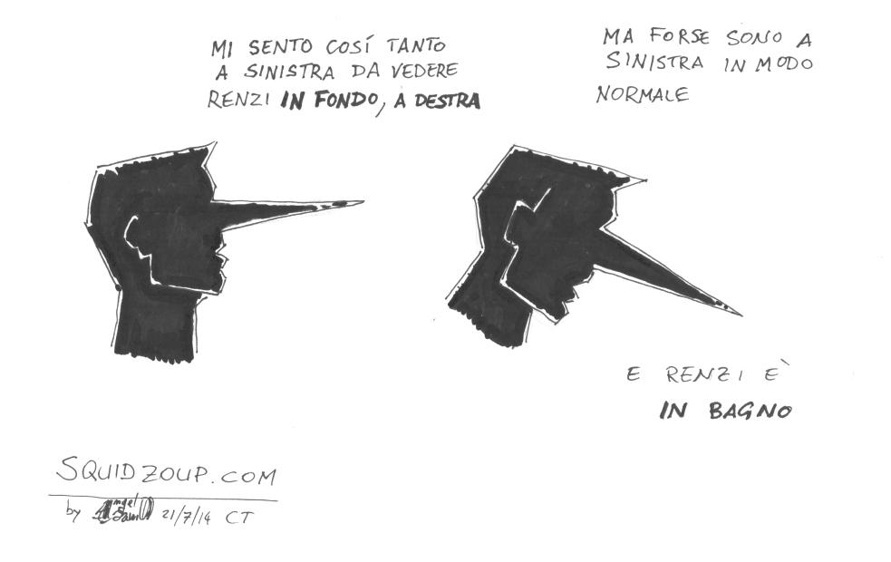 Renzi Dx